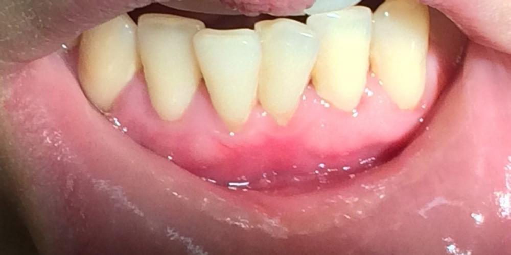 Результат лечения оголения корней передних зубов