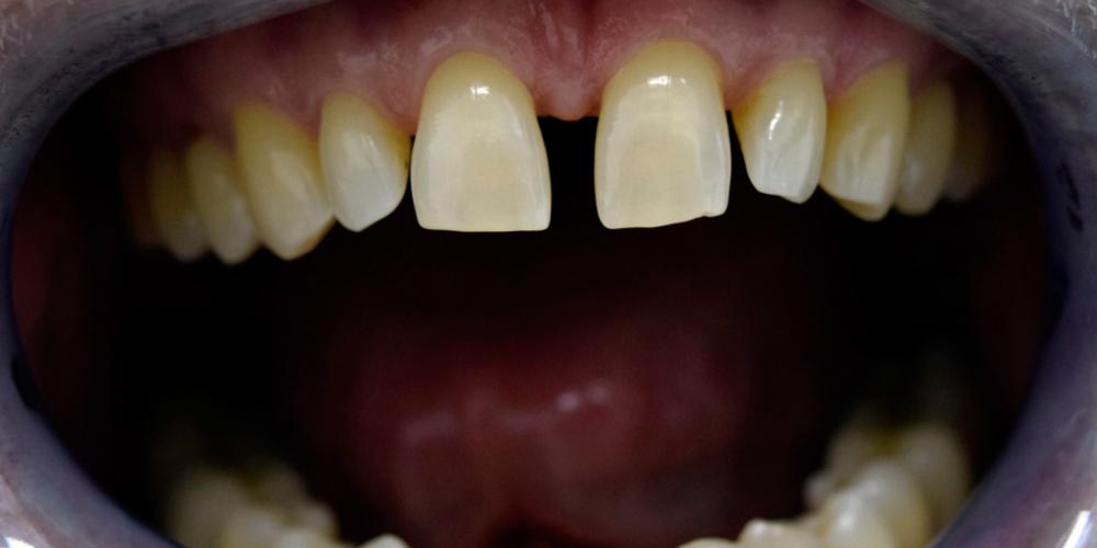 Закрытие диастемы зубов керамическими винирами фото до