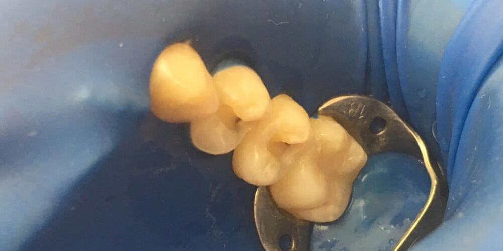 Лечение кариеса двух жевательных зубов