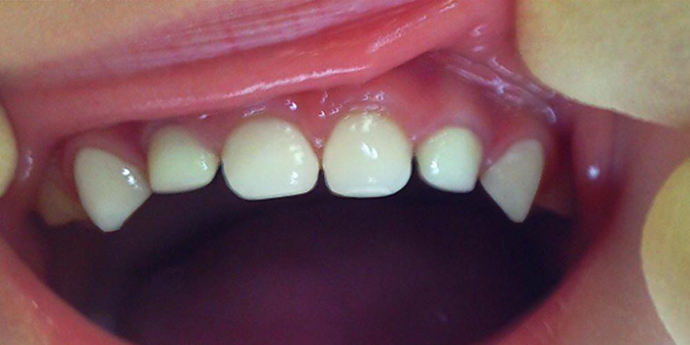 Лечение кариеса и восстановление разрушенных молочных зубов