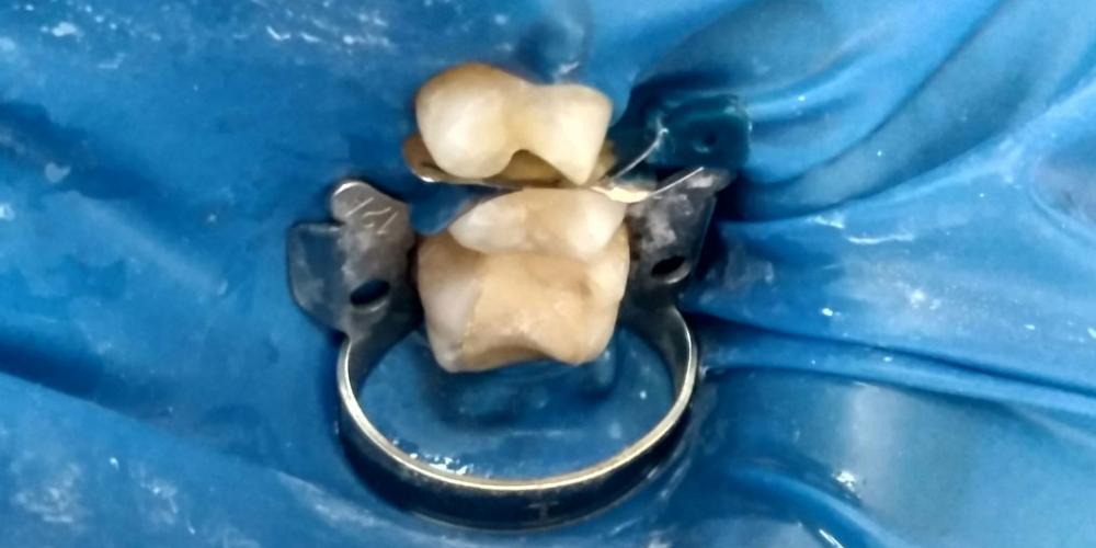 Лечение глубокого кариеса зубов 24,25, реставрация материалом FiltekZ550