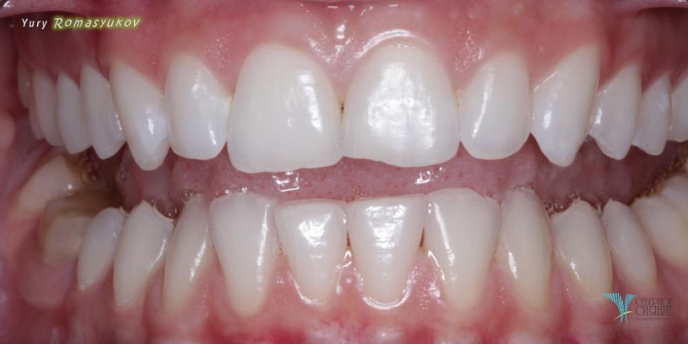 Результат отбеливания зубов системой Opalescence