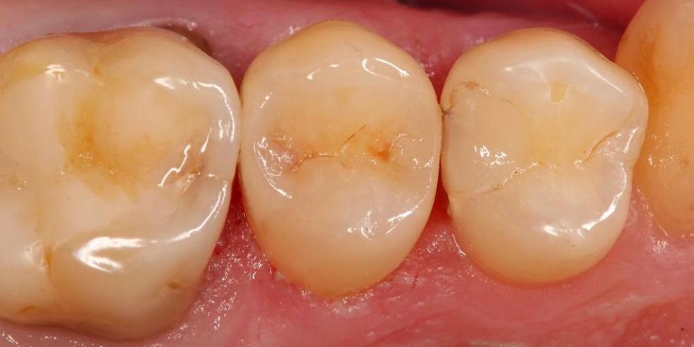 Реставрация зуба 25, лечение от чувствительных и термических раздражений, застревание пищи