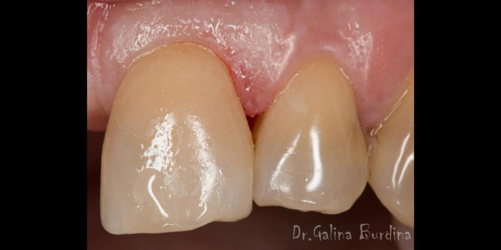 Фото после лечения. Реставрация зуба 21, дефект по 3 классу