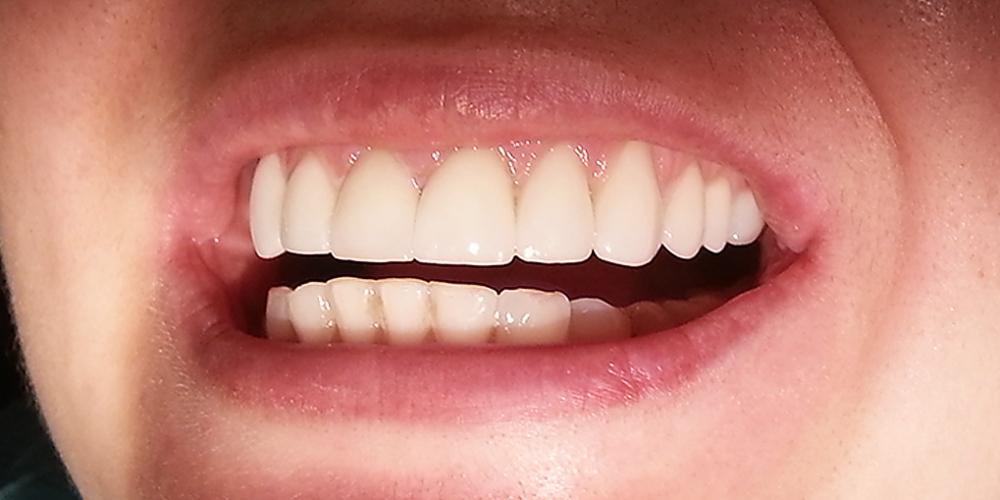 Реконструкция улыбки с помощью керамических виниров E-MAX стандарт фото после