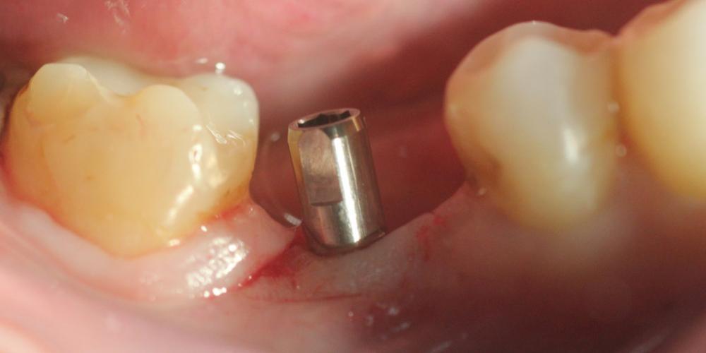 Установка имплантата Ankylos без разреза на нижней челюсти