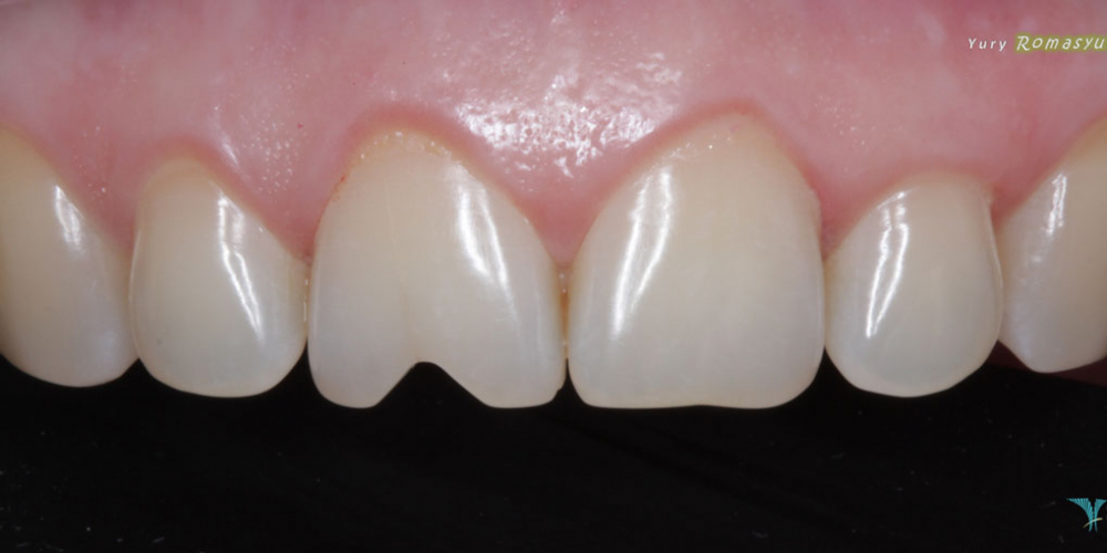 Востановление скола зуба, центрального резца
