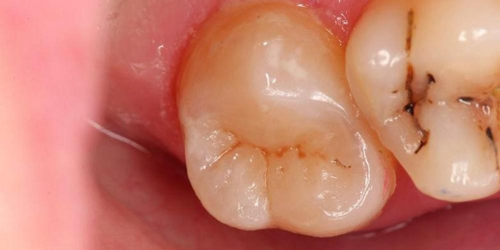 Реставрация зуба 17, вторичный кариес