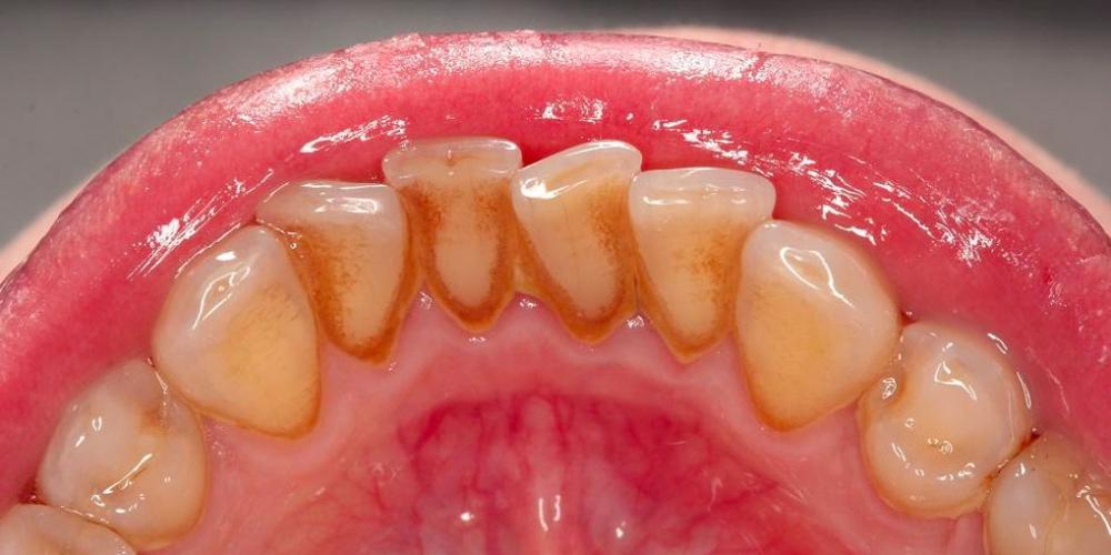 Результат профессиональной гигиены полости рта