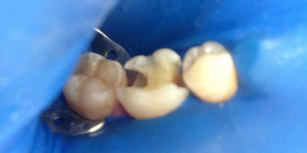 Жалобами на чувствительность зубов с правой стороны на сладкое