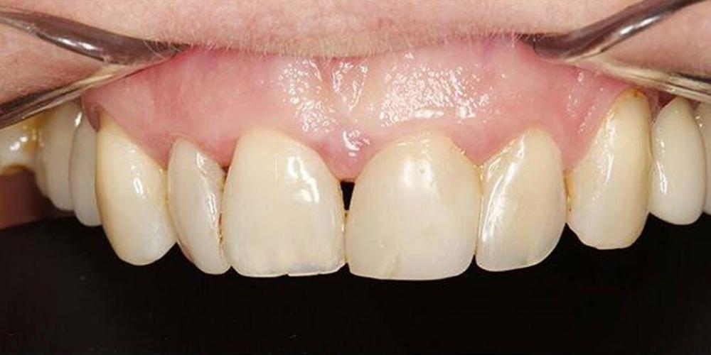 Прямая реставрация 4-х центральных резцов верхней челюсти