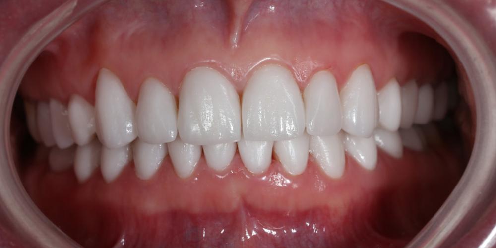 Реконструкция зубов керамическими винирами фото после