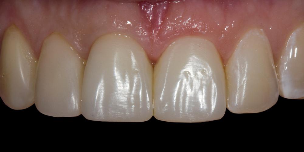 Жалобы на неудовлетворительную эстетику передних зубов