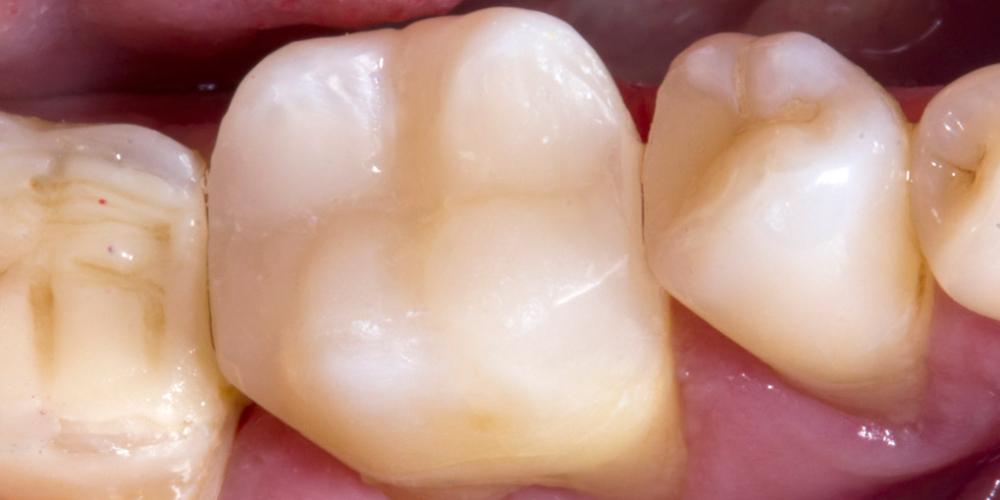 Обострение хронического фиброзного пульпита зуба 3.6