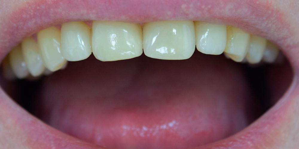 Закрытие диастемы зубов керамическими винирами фото после
