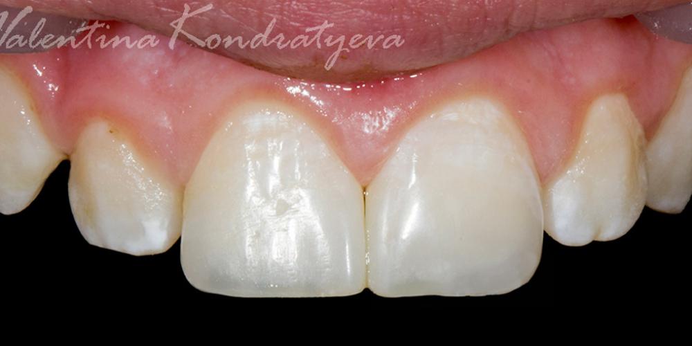 Реставрация дефекта передних зубов прямым способом