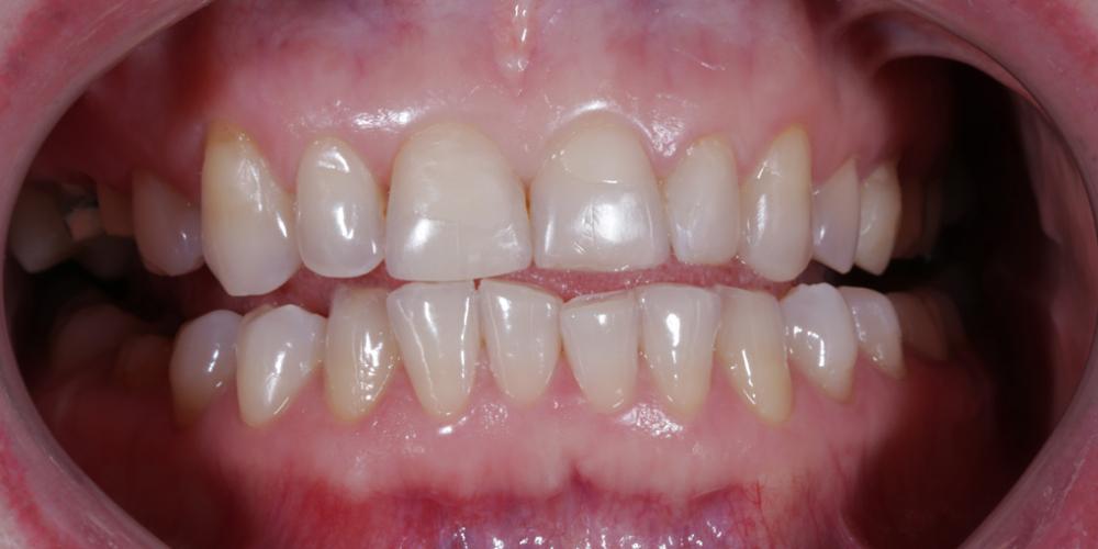Реконструкция зубов керамическими винирами фото до