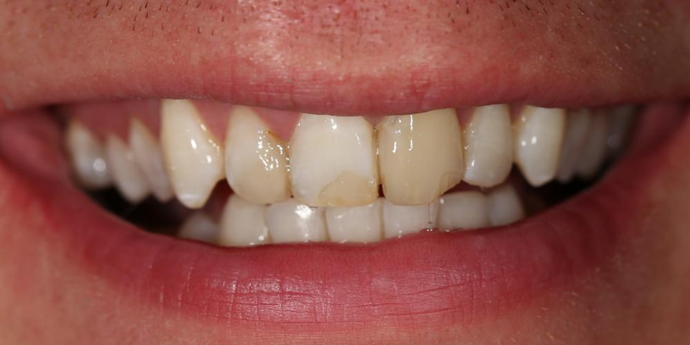 Сделать цвет зубов равномерным и естественным, убрать сколы и выровнять несимметричные края зубов