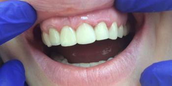 Реставрация фронтальной группы зубов безметалловыми коронками е-Мах фото после лечения