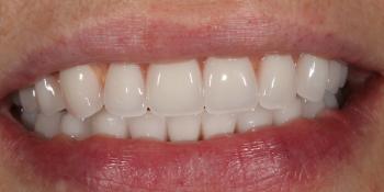 Установка телескопических зубных протезов на импланты фото после лечения