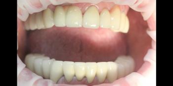 Комплексное восстановление жевательной и эстетической функции зубов фото после лечения