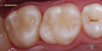 Лечение фисурного кариеса силиконовым ключом фото после лечения