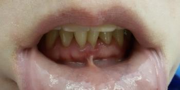 Результат лечения оголения корней передних зубов фото до лечения