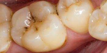 Результат реставрации жевательного зуба Filtek Ultimate фото до лечения