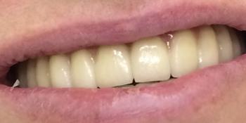 Дентальная имплантация зубов верхней челюсти фото после лечения