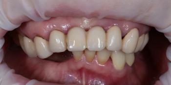 Установка телескопических зубных протезов на импланты фото до лечения