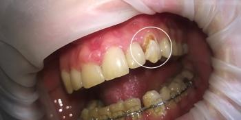 Восстановление зуба композитным материалом «Estelitе» и лечение кариеса фото до лечения