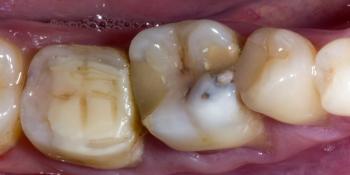 Обострение хронического фиброзного пульпита зуба 3.6 фото до лечения