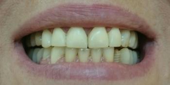 Протезирование на дентальные импланты, виниры из пресованной керамики Emax фото до лечения