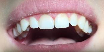 Реставрация с использованием композитного материала «Estet X» фото после лечения