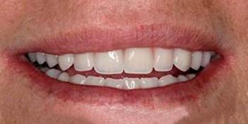 Полное протезирование зубов на имплантах фото после лечения