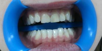 Эстетическая реабилитация фронтальных зубов с пластикой десневого края фото до лечения