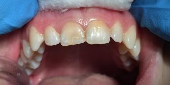 Реставрация с использованием композитного материала «Estet X» фото до лечения