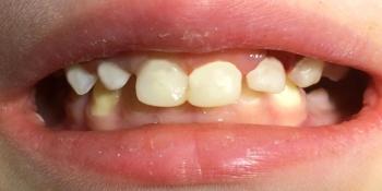 Восстановление целостности молочных зубов Strip-коронками  фото после лечения