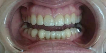 Полная реконструкции фронтальной группы зубов верхней и нижней челюсти безметалловыми конструкциями фото после лечения