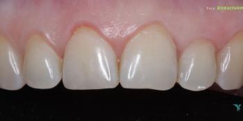 Востановление скола зуба, центрального резца фото после лечения