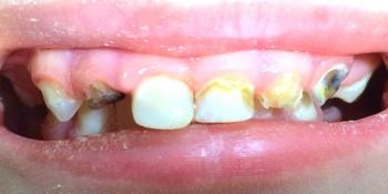 Восстановление целостности молочных зубов Strip-коронками  фото до лечения