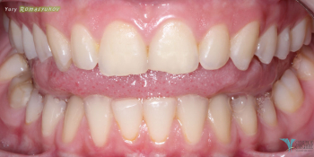 Результат отбеливания зубов системой Opalescence фото до лечения