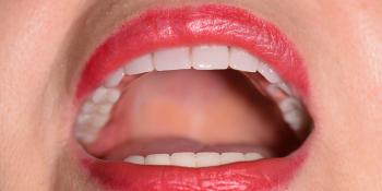 Комбинированное протезирование челюстей фото после лечения