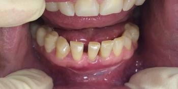 Результат лечения подвижности передних нижних резцов фото после лечения