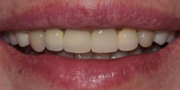 Лечение десен и эстетическая реставрация передних зубов фото после лечения