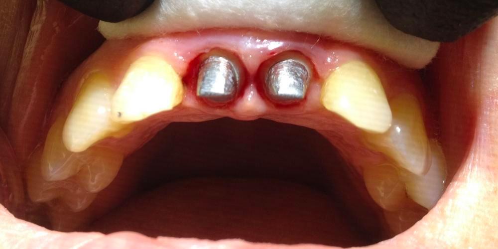 Восстановление центральных резцов верхней челюсти мк коронками