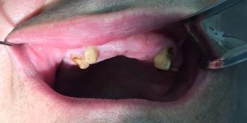 Имплантация зубов системой Osstem на верхнюю челюсть + протезирование фото до лечения