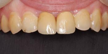 Восстановление центральных резцов верхней челюсти мк коронками фото после лечения