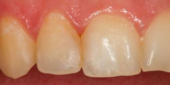 Реставрация зубов 12, 11 по 3 классу и восстановление длины зуба 21 фото до лечения