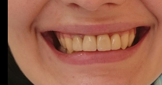 4 коронки из Е-max (прессованная керамика) фото после лечения